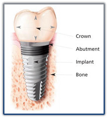 Dental Impants, Marty J Saltzman DDS LLC, Baton Rouge LA, 225.291.3636